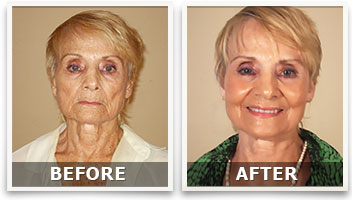 lifecell anti aging treatment
